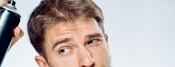 髪や頭皮を守るための紫外線対策方法