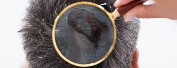 フケとAGAにはどんな関係がある? 頭皮にフケが発生する原因と対策法